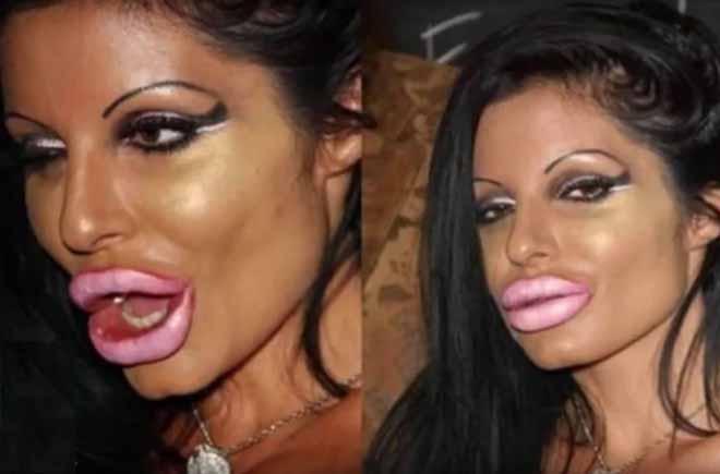 napumpane usne
