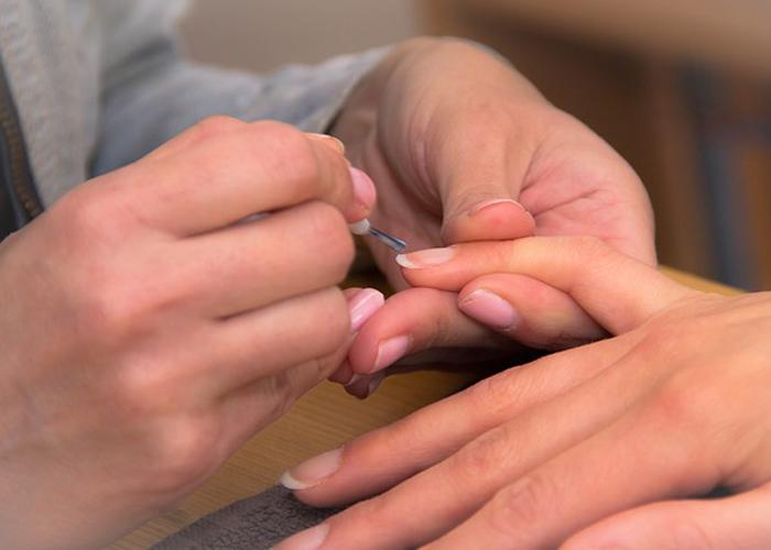 nokti-otkrivaju-istinu-o-vasem-zdravstvenom-stanju-tamne-crte-nisu-dobar-znak