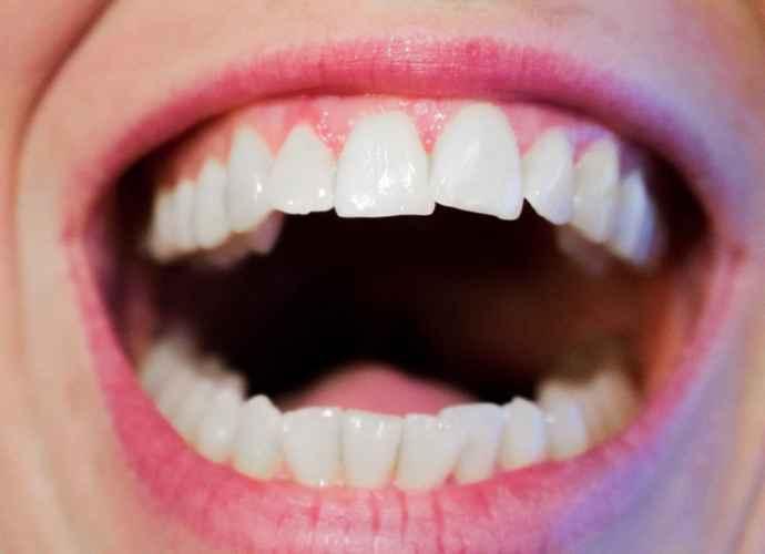 Usta i zubi foto Pixabay