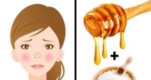 Zapušene pore: morska so + med