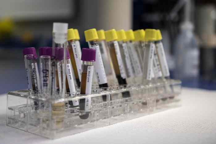 Krvna slika: Tumačenje rezultata, vrednosti i moguće bolesti na koje mogu ukazivati.